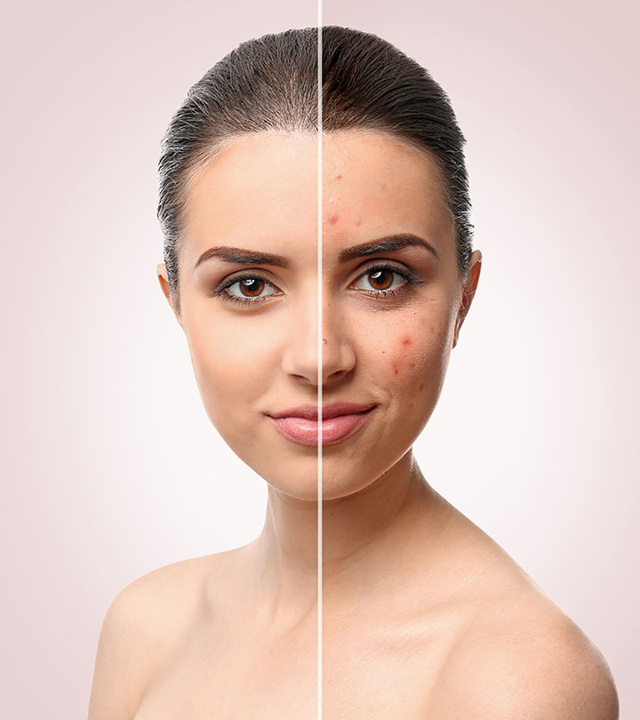 What Are Home Remedies For Pimples Ayurvedic Pharma